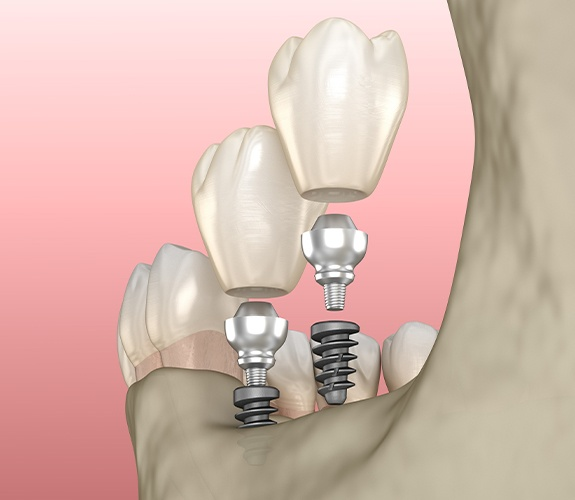 Animated dental implant supported dental crown restorations