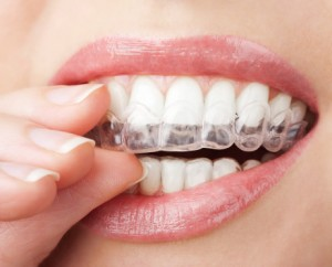 Are you living with misaligned teeth? Learn more about the benefits of Invisalign in Marion.